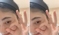 Cúc Tịnh Y bị nghi thẩm mỹ mũi